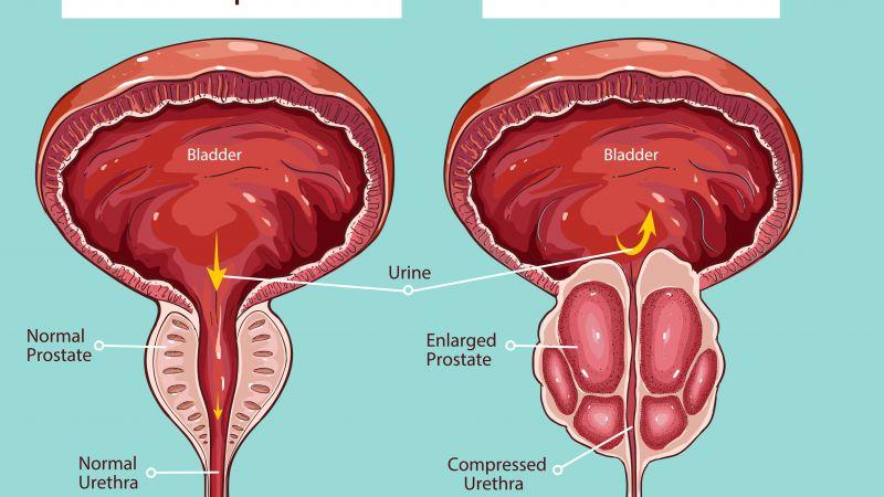 男人前列腺很重要,如有这4个表现,代表前列腺健康