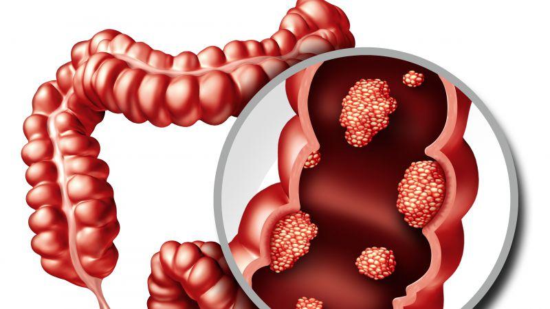 直肠癌都是静悄悄的,出现以下三个标志,往往提示癌症在不断进展
