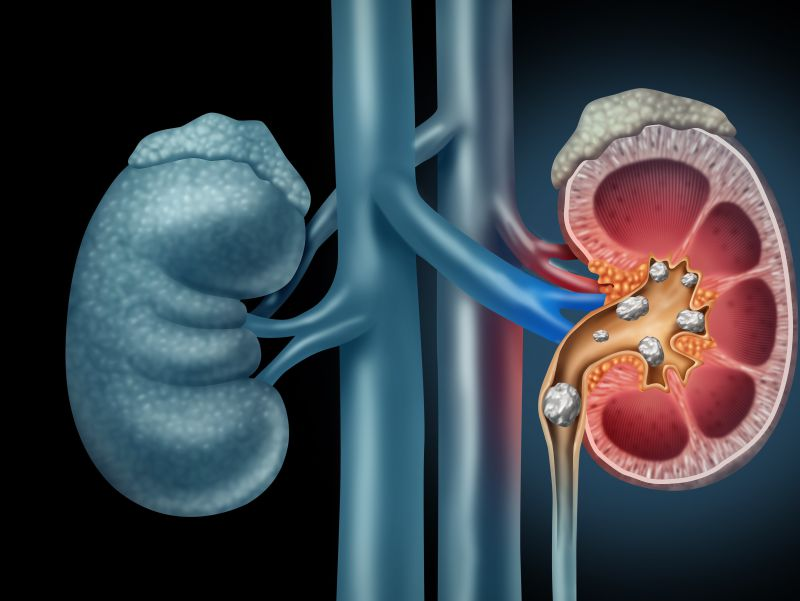 肾结石对身体危害大!做到这4点,预防结石,保护肾脏