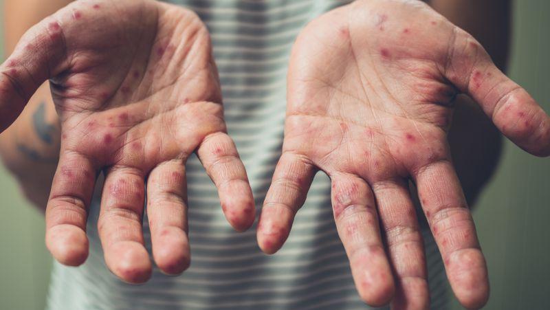 手足口病可能是通过这4种方式传播的,须尽早预防