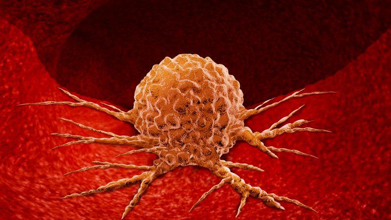 近期有这5个症状,最好去趟肿瘤科,希望是虚惊一场