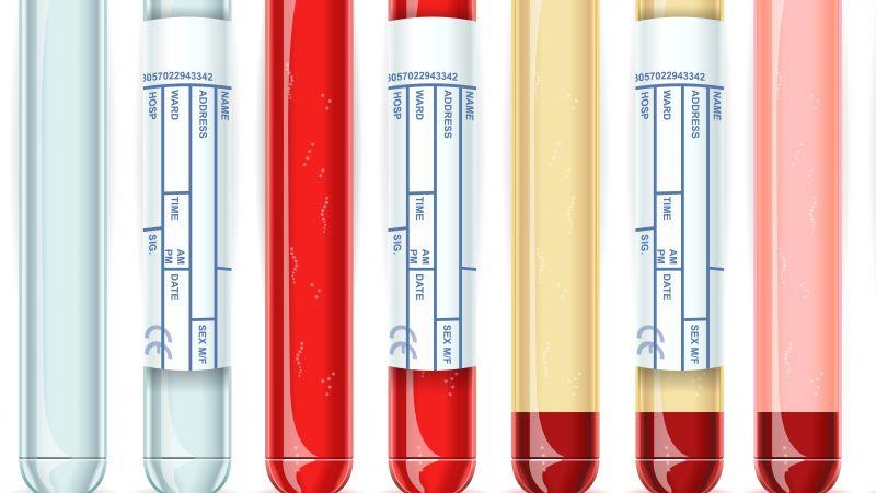 遗传性血管神经性水肿是怎么回事