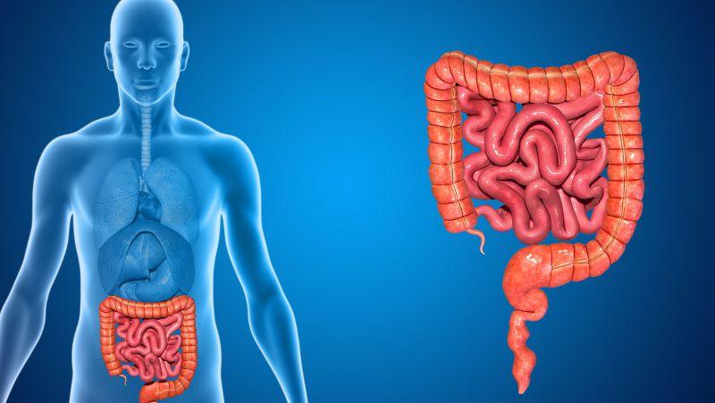 肠息肉容易诱发肠癌,做好5件事,防住肠息肉