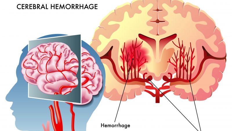 脑出血如何恢复健康