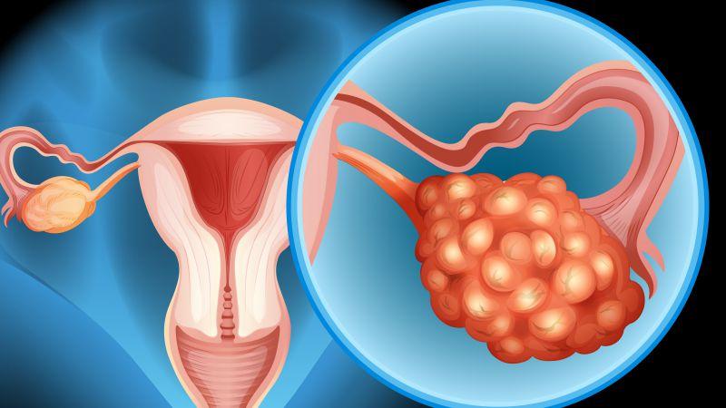 女性反复腹胀是卵巢癌在作怪?需要做排除,这4种检查要牢记