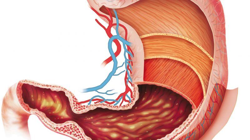 脾胃不好的人,饮食要注意这4点,才能养好脾胃,促进健康