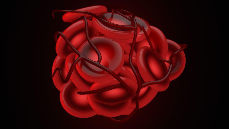 """血栓发生前,身体会出现五个""""破绽"""",发现后,及时检查,莫忽视"""